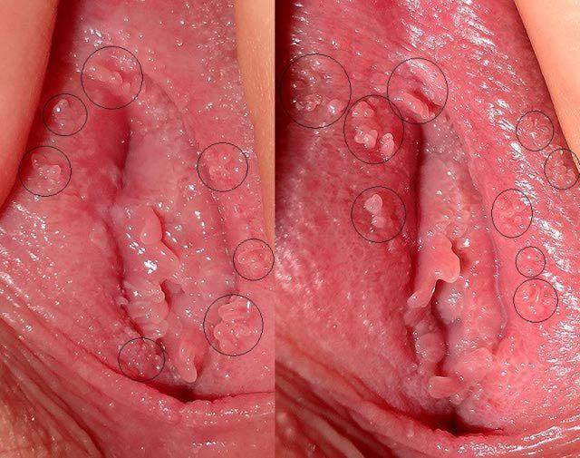 Her Herpes virus in lesbian partners