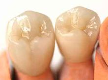 reasons why dental crowns are necessary
