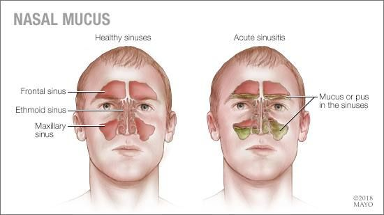 a medical illustration of the sinuses and nasal mucus