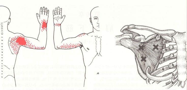 5-4 手の痛み、しびれ | トリガーポイントとは?腰痛・肩こり・関節痛などの痛みの原因