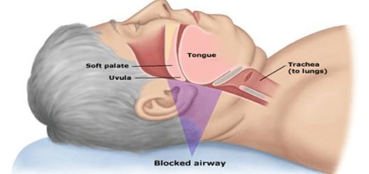 10 Home Remedies Which Will Help You Stop Snoring