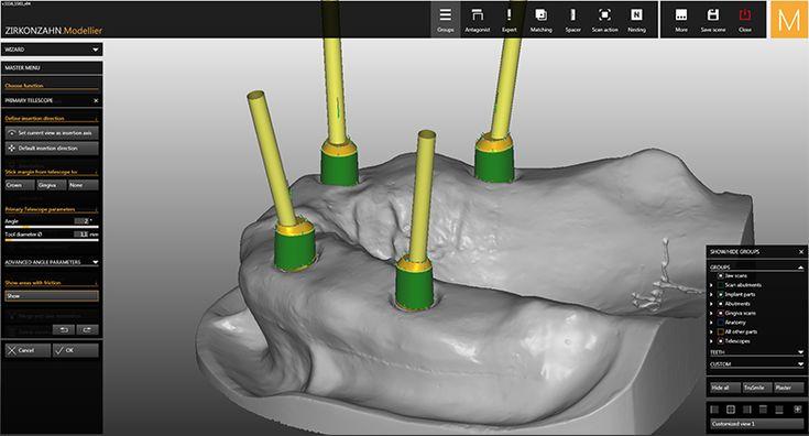 Software-Module CAD/CAM Telescopic Crowns