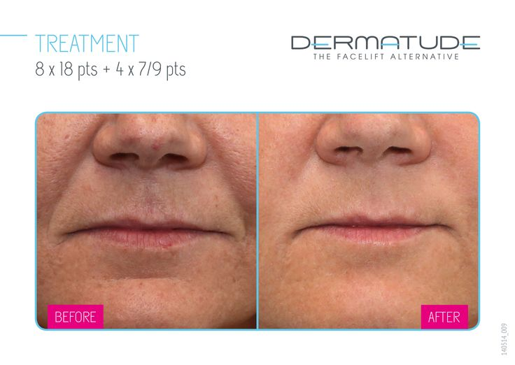 Before and After mouth #Dermatude
