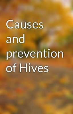 """Read """"Causes and prevention of Hives - Causes and prevention of Hives"""" #wattpad #short-story"""