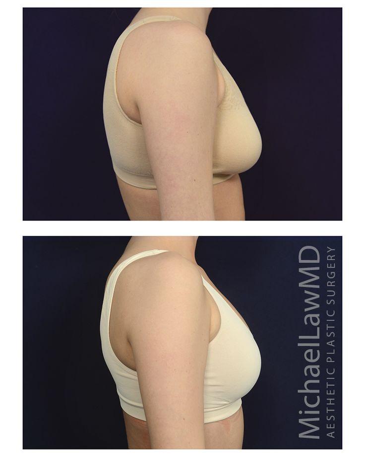 raleigh breast augmentation surgeon jpg 853x1280