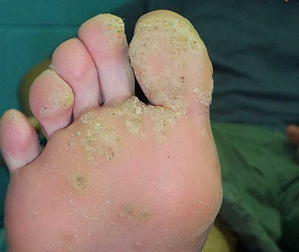 Plantar wart on bottom of foot home treatment