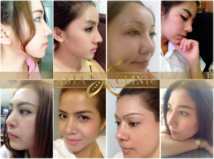 17 Best Images About Plastic Surgery In Thailand On