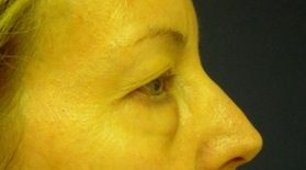 Eyelid Lift Surgery - Cost, Recovery & Risks