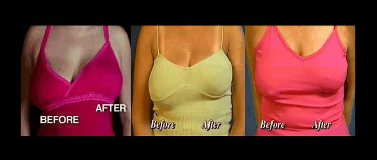 Please Share How To Lift Sagging Breasts Naturally With -5453