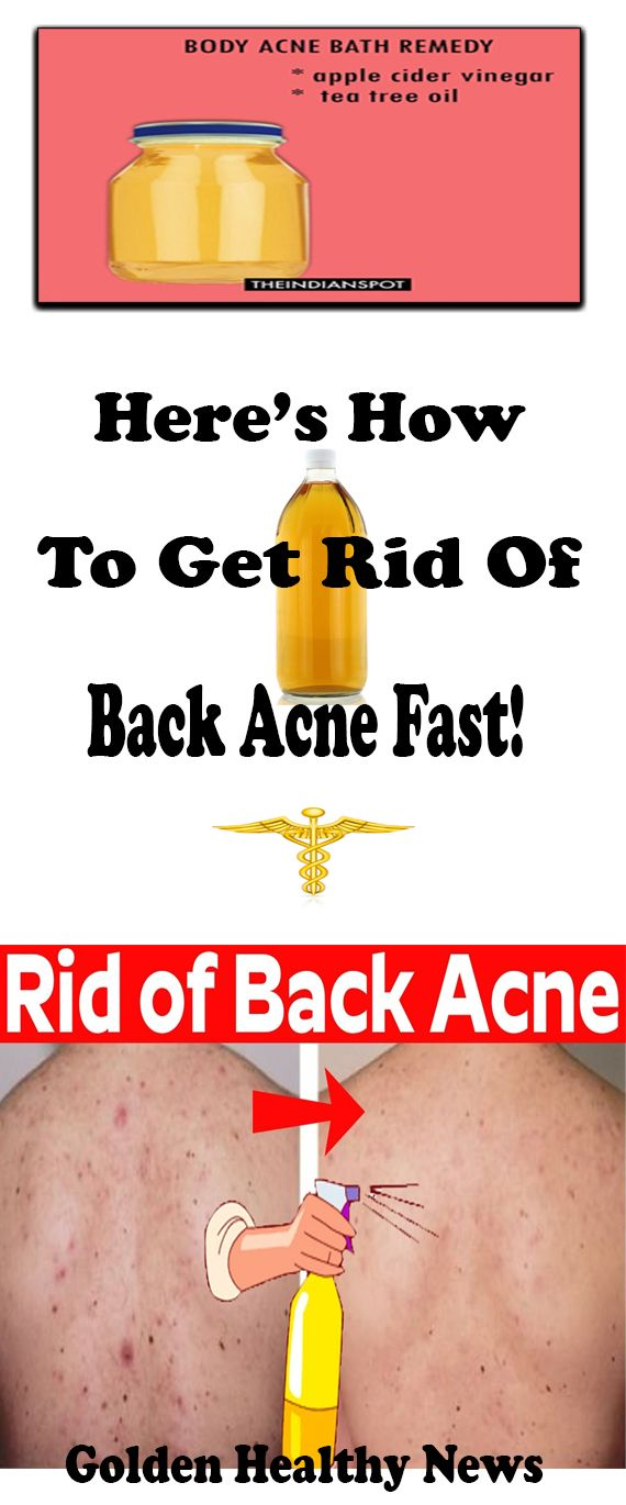 HERE'S HOW TO GET RID OF BACK ACNE FAST! ONLY 5 MINUTES!!!