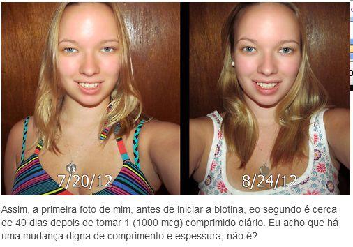biotina antes e depois do crescimento dos cabelos