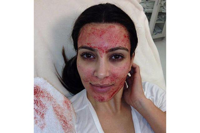 I Got the Kim Kardashian Vampire Facial