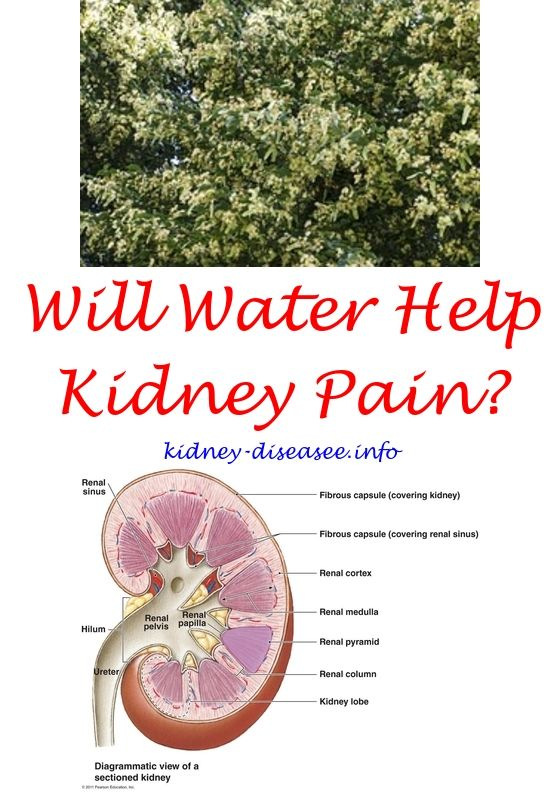 renal care associates - calcium phosphate kidney stones.dialysis care 9173251600