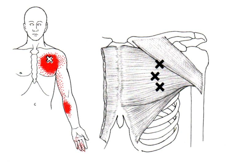 myofascial trigger point chart pdf