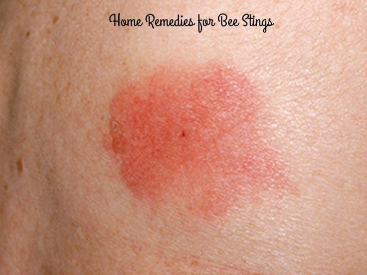how to get rid of a bee sting infection