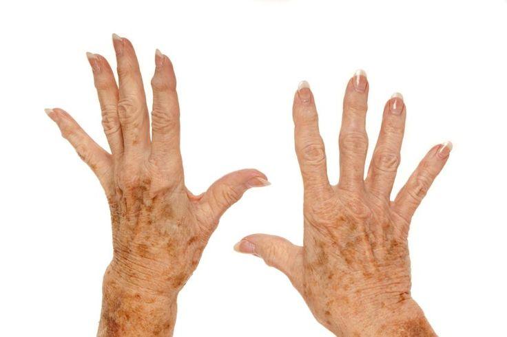 Altersflecken müssen Sie nicht belästigen.Skinlight hilft Ihnen sich wieder jung zu fühlen!