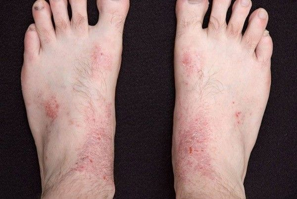 Eczema, also known as dermatitis, refers to a set of diseases that lead to skin inflammation, which is best characterized by red skin, rashes, and itchiness. As a group of skin conditions, eczema includes stasis dermatitis, irritant contact dermatitis, allergic contact dermatitis, and atopic dermatitis. While the exact root of the condition remains vague, allergy, …