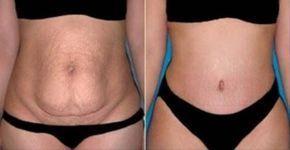 El exceso de grasa del vientre es un peligro para la salud que contribuyen al desarrollo de muchas condiciones de salud, incluyendo enfermedades del corazón, hipertensión, trastornos metabólicos, asma, enfermedad de Alzheimer, aterosclerosis, la disminución de la fertilidad y problemas con los ó