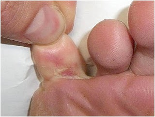 Natural Ways to treat Itchy foot     Way 3:  One can treat itchy feet at home by applying white vinegar to the affected feet.