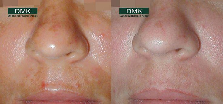 DMK Pigmentation - Before & After