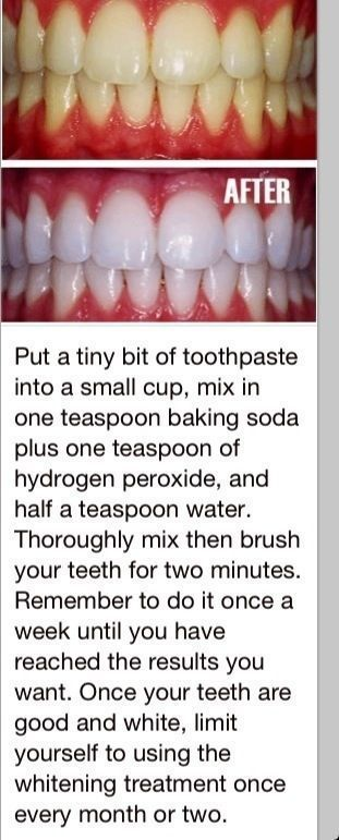 White teeth, this actually worked!! More: http://ibeebz.com