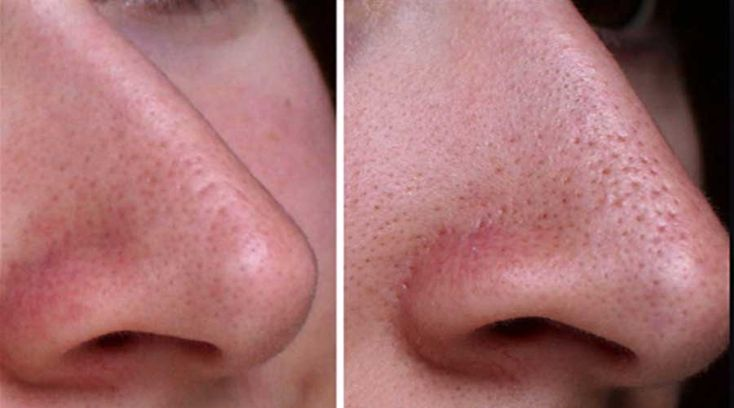 how to clean and shrink nose pores