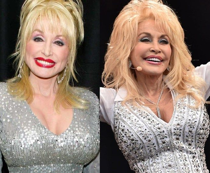 7 Best Dolly Parton Plastic Surgery Images On Pinterest -6504