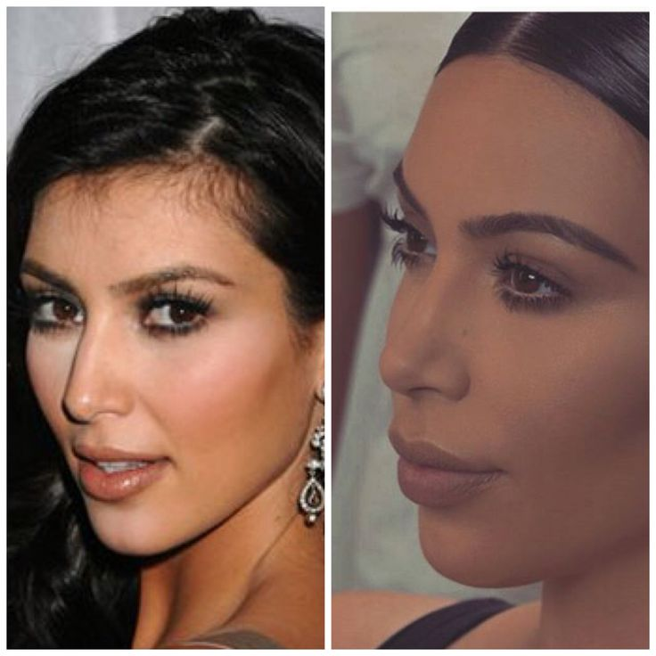 17 best images about plastic surgery pics on pinterest man and wife kim kardashian and iggy. Black Bedroom Furniture Sets. Home Design Ideas