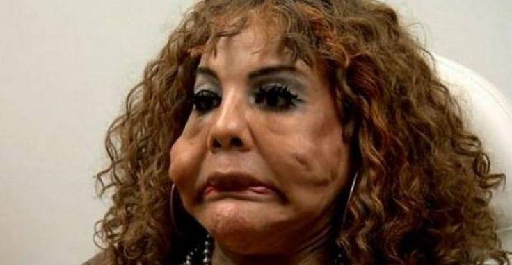 Mujer a la que le inyectaron cemento y sellador de neumáticos en la cara al fin pudo ser operada