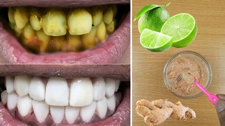 Pin On Home Remedies