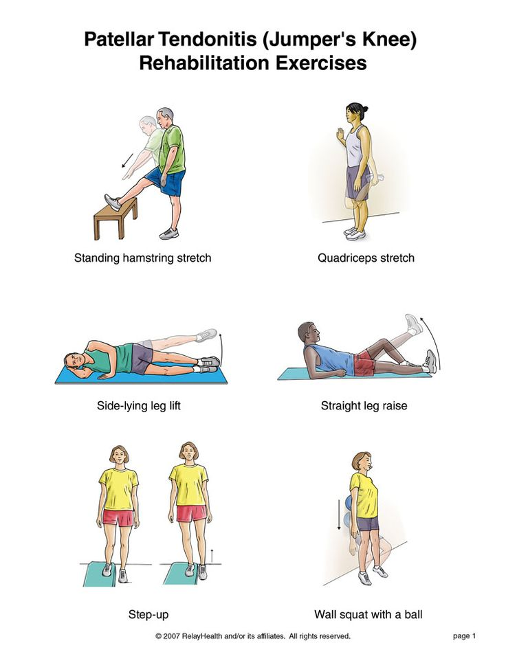 Summit Medical Group - Patellar Tendonitis (Jumper's Knee) Rehabilitation Exercises-Repinned by  SOS Inc. Resources  http://pinterest.com/sostherapy.