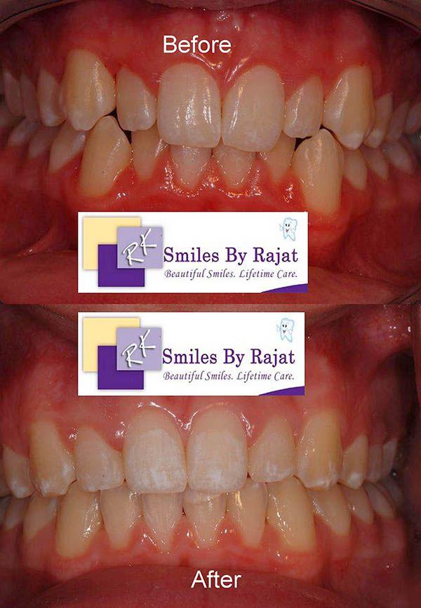 Teeth Straightening Treatments in Delhi | Teeth Straightening Surgery in India | Cosmetic Teeth Straightening Surgery | Teeth Straightening in One Day - Dental Care