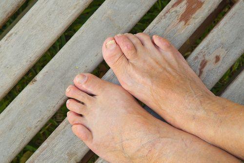 Common Skin and Nail Conditions of the Foot.