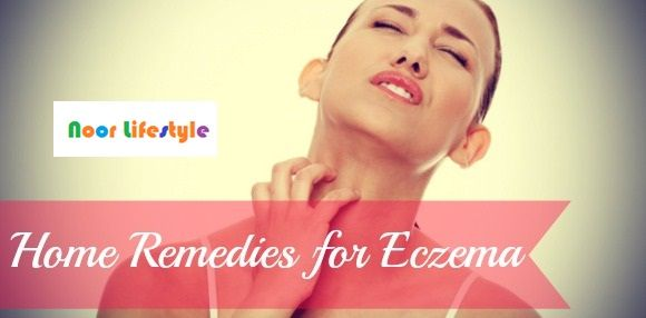 Eczema Home Treatment/Remedies See More details at: http://bit.ly/1HMLfTb