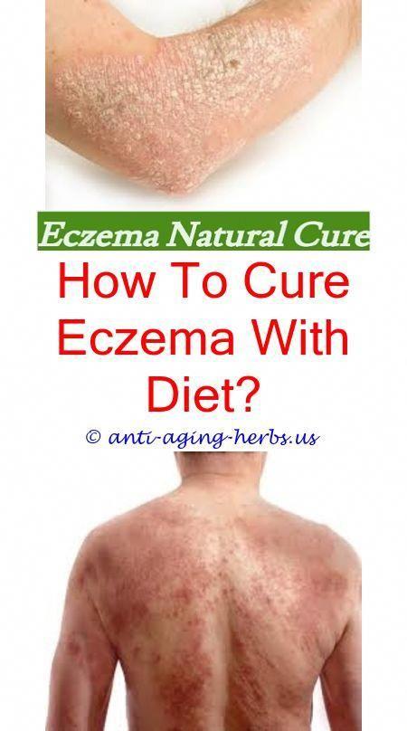 Eczema During Pregnancy >> Infant Scalp Eczema Topical Antihistamine For Eczema Eczema On