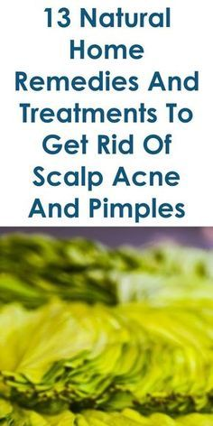 This Guide Shares Ideas On The Following; Scalp Acne Pictures, Hair Loss And Pimples On Scalp, Hair Loss And Pimples On Face, Bald Spot After Pimple, Pimples Scalp Causing Bald Spots, Alopecia Areata Pimples, Bald Spot On Head With Bump, Will Hair Grow Back After Pimple, Etc.