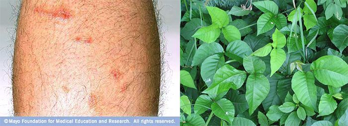 Treat Poison Ivy Rash with Items You can Find from Home