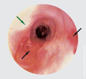5 18k01Refluxkrankhheit(Gastroösophageale Refluxkrankheit, gastroesophageal reflux disease, GERD): Vermehrter 18b02Reflux, d. h. Rückfluss von saurem...