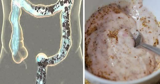 disintossicare colon semi di lino kefir