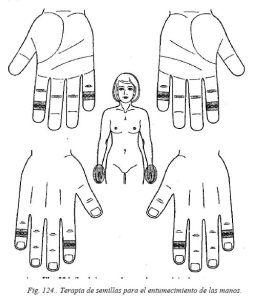 su-jok-48-terapia-de-semillas-entumecimiento-manos