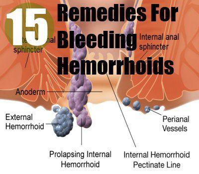 http://15 Home Remedies For Bleeding Hemorrhoids