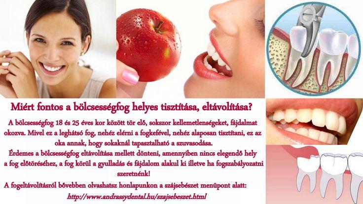Fájdalmat okoz a bölcsességfogad? Nálunk van megoldás! www.andrassydental.hu