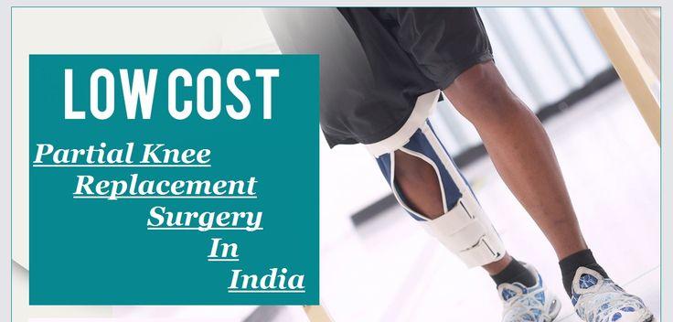 Cost effective #PartialKneeReplacementSurgeryinIndia - Is it a good option
