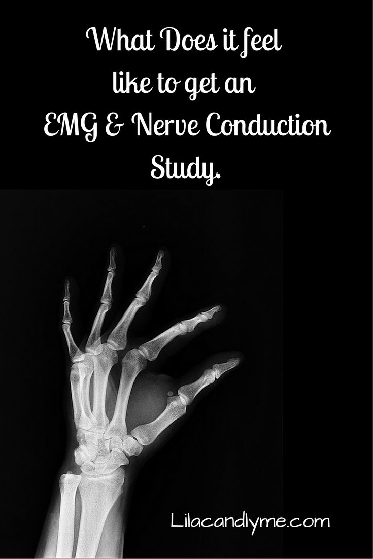 What Does it feel like to get an EMG & Nerve Conduction Study.