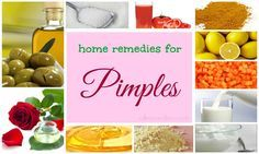 36 natural home remedies for pimples on face