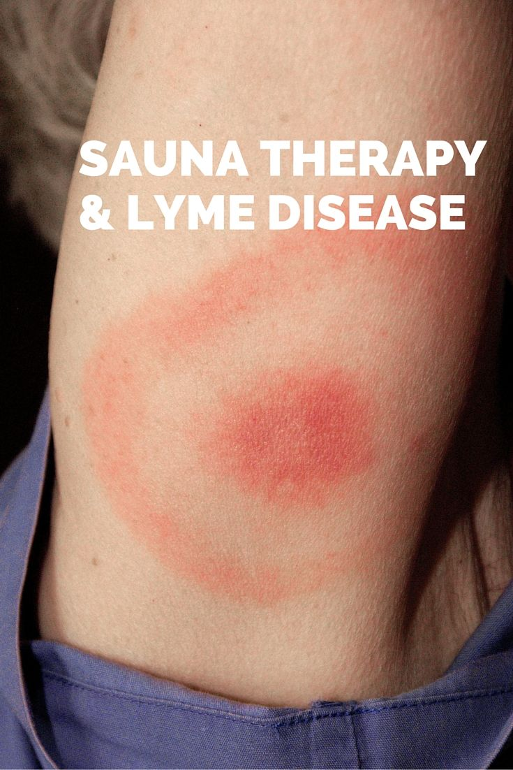 Sauna therapy is considered a cornerstone in the fight against the bacteria types that cause Lyme. Read more here: https://saunaspace.com/sauna-therapy-lyme-disease/