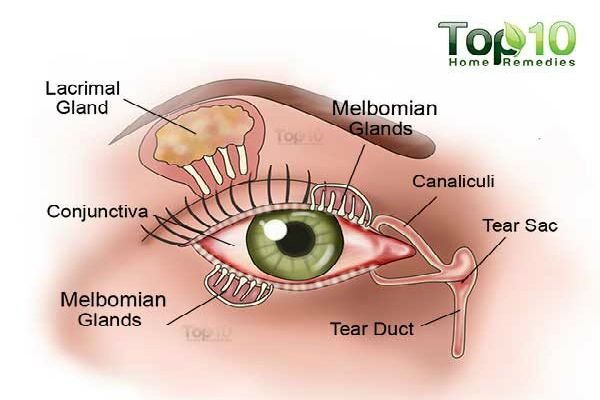 Dry eyes, also known as dry eye syndrome, occurs when your tears are not providing enough lubrication for your eyes. This can cause a lot of discomfort and produce several signs and symptoms. Some signs and symptoms of dry eyes are a stinging or burning sensation in the eyes, stringy mucus in