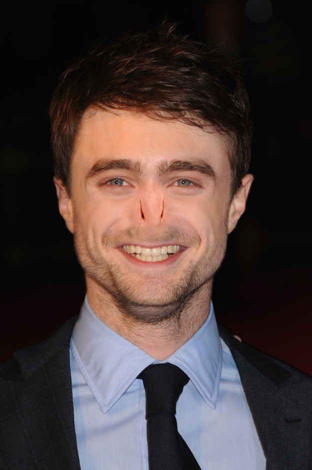 Daniel Radcliffe. | 13 Celebrities With Voldemort's Nose