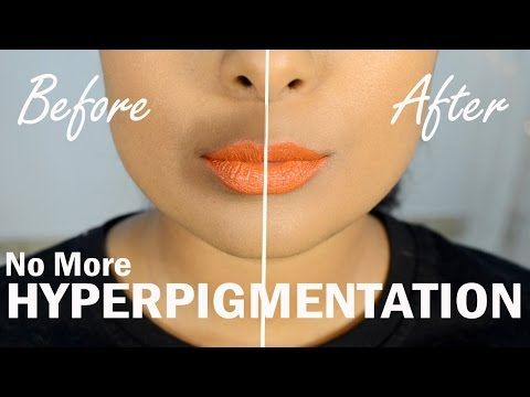 Fade Treatment For Skin Discoloration