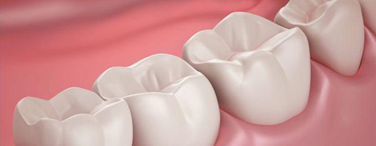 Dental Fillings | Surrey Dentist – Surrey Place Dental Group https://surreyplacedental.com/white-silver-fillings/